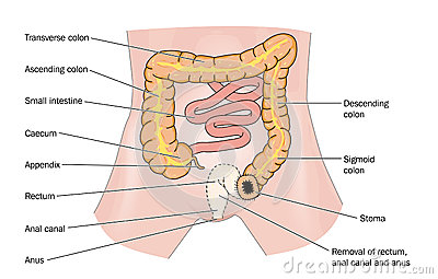 Rectal cancer and stoma