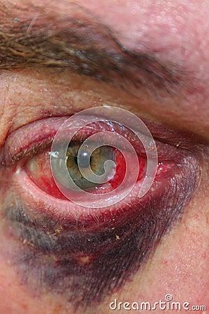 Reddened eyeball and black eye
