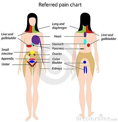 Referred pain chart