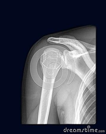 Regular human shoulder