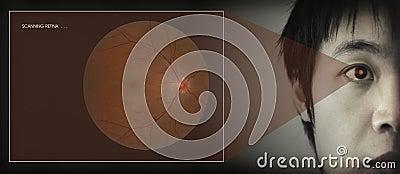 Retinal bildläsning