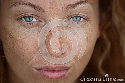 Siti di pelle senza pigmentazione