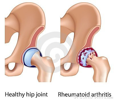 Rheumatoid arthritis of hip joint
