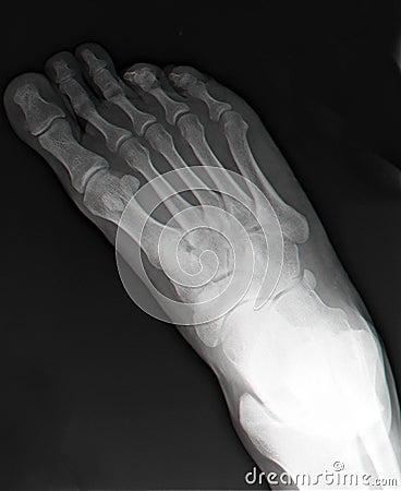 bones of foot. Top view of right foot thru X-
