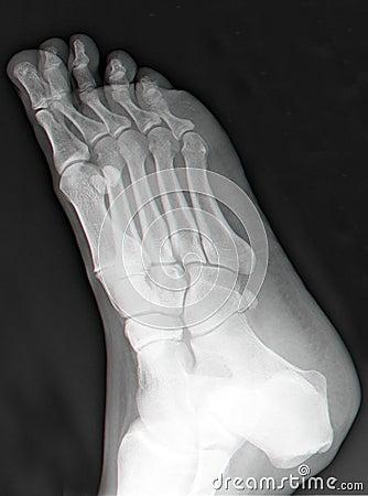 bones of foot. Top view of right foot in X-