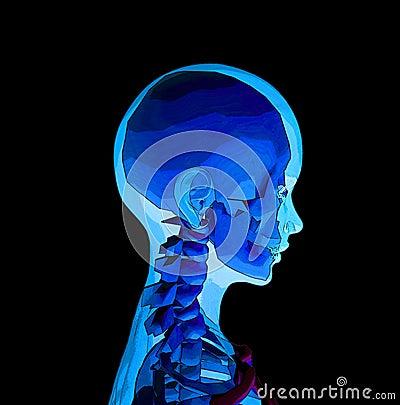 Röntgenstraal 4