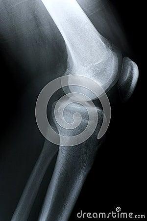 Röntgenstraal/de kant van de Knie