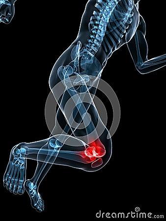 Running skeleton - painful knee