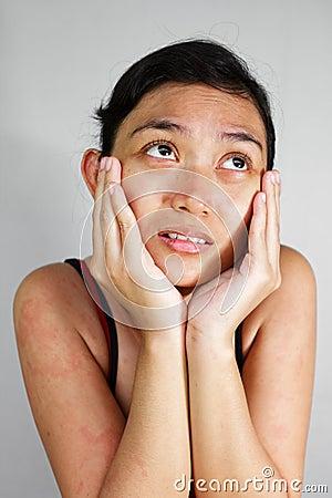 Sad woman with skin rash