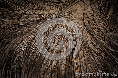 Scalp skin with hair fall