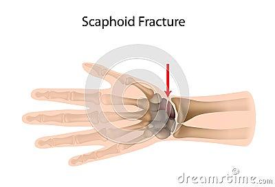 Scaphoid wrist fracture