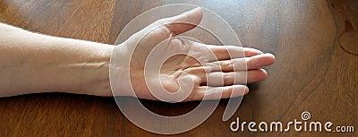 Scarred hand(Dupuytren desease)