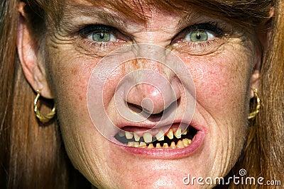 Scary Face Bad Teeth