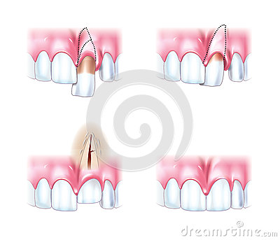 Scheme dislocations teeth