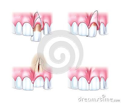 Scheme dislocations teeth