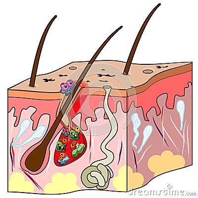 Scheme of skin with acne