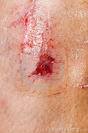 Scraped Knee