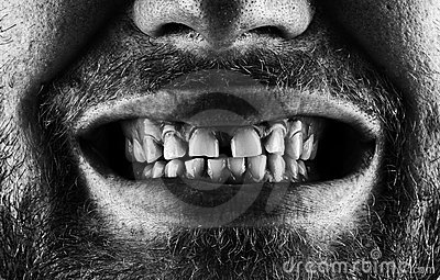 Screaming bearded mouth