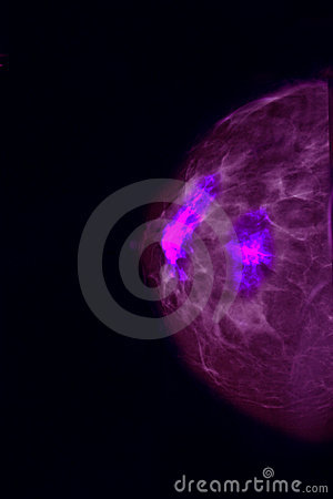 Free Screening For Breast Cancer Royalty Free Stock Photos - 15834918