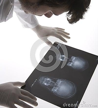 Free Scull X-ray Royalty Free Stock Photo - 5473985