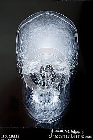 Free Scull X-ray Royalty Free Stock Photos - 5473988