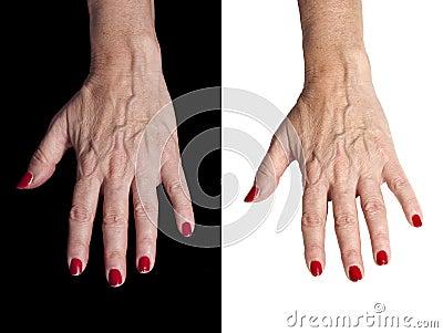 Isolated Senior Hands