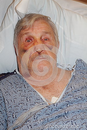Free Senior Man Hospital Selfie Royalty Free Stock Photography - 44190967