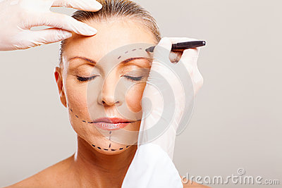 Senior woman plastic surgery