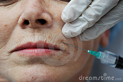 Senior woman getting skin injection