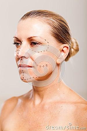 Senior plastic surgery
