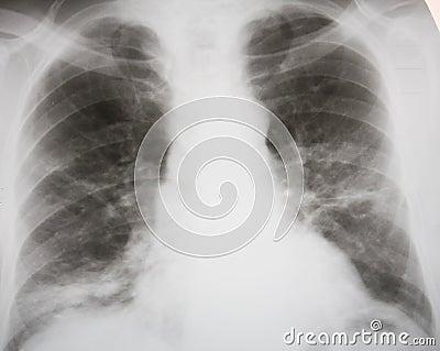 Septic pneumonia