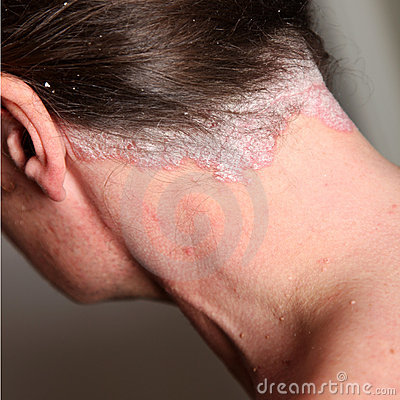 Free Severe Psoriasis - Neck Royalty Free Stock Photography - 17663187