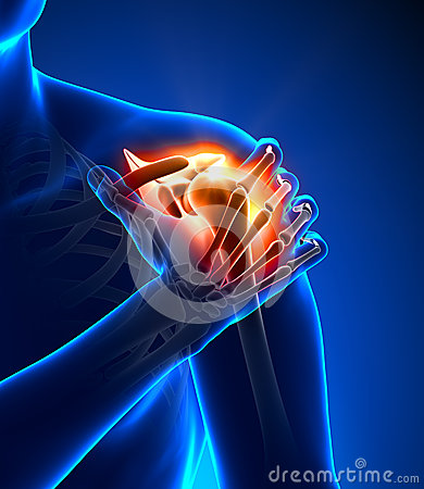 Free Shoulder Pain - Detail Stock Photos - 30057983