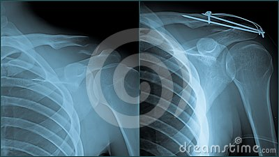 Shoulder trauma Xray