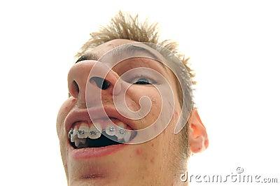 Showing off braces