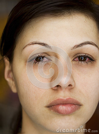 Sick womans eyes