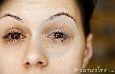 Sick womans eyes