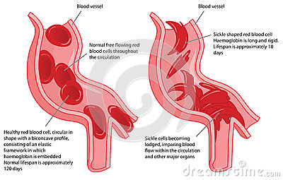 types of sickle cell disease pdf