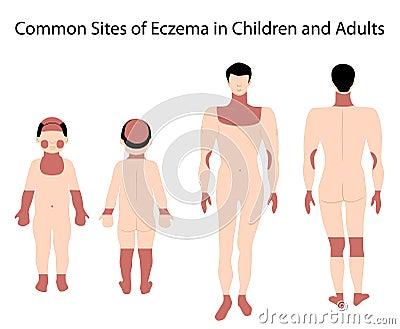Sites of Eczema