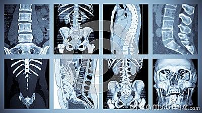 Skeletal Computer Tomography Scan