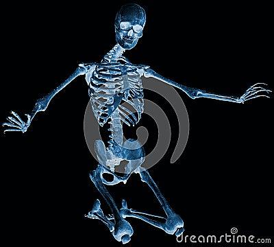 Skeleton kneel x ray