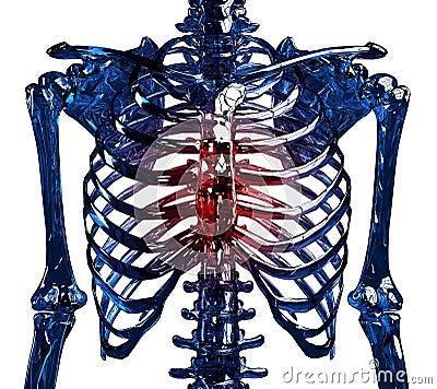 Glass skeleton thoracic pain