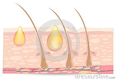 Skin anatomy with acne