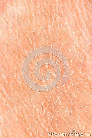 Skin background
