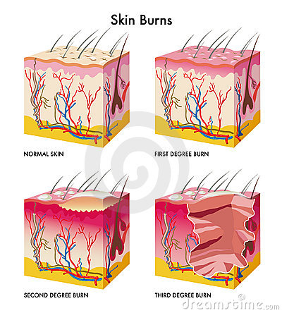 Free Skin Burns Stock Photos - 20841603