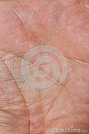Skin macro