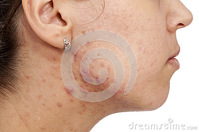 Skin Problems Stock Photography - Image: 27975172