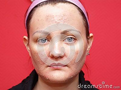 Skin woman peeling.