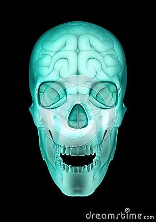 Skull brain x-ray