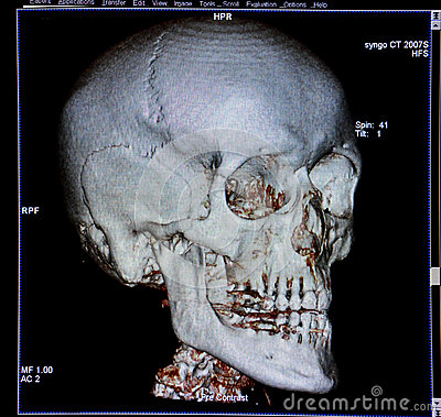 Skull, CT-scan reconstruction, anatomy